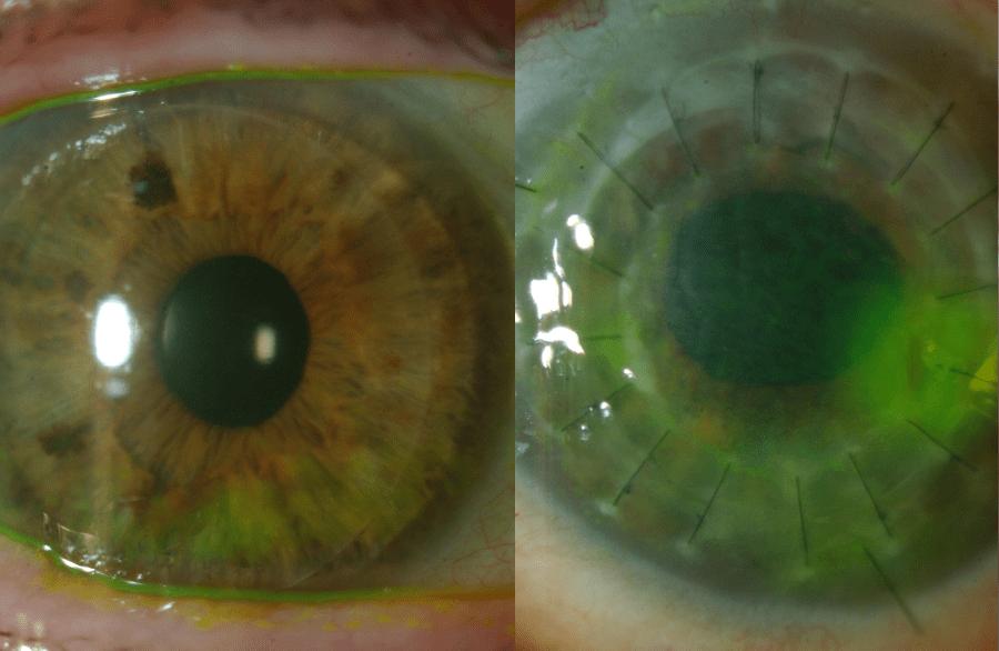 Ocala Eye DSAEK vs PKP