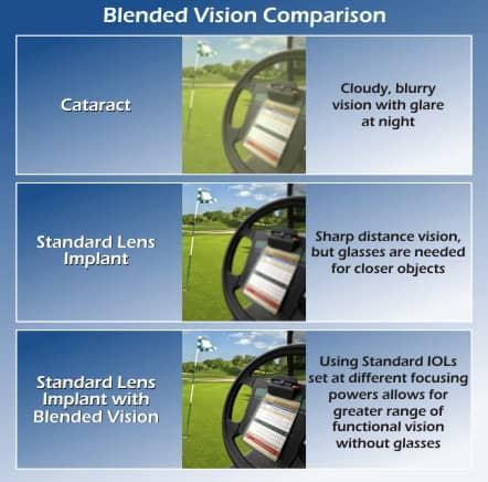 Blended Vision   Ocala Eye