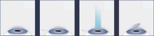 Ocala Eye lasik