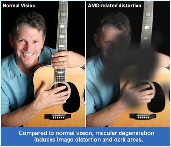 Ocala Eye retina macular